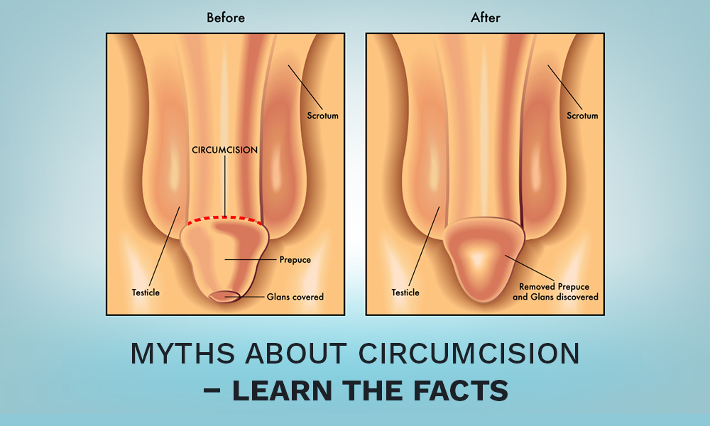Myths about Circumcision