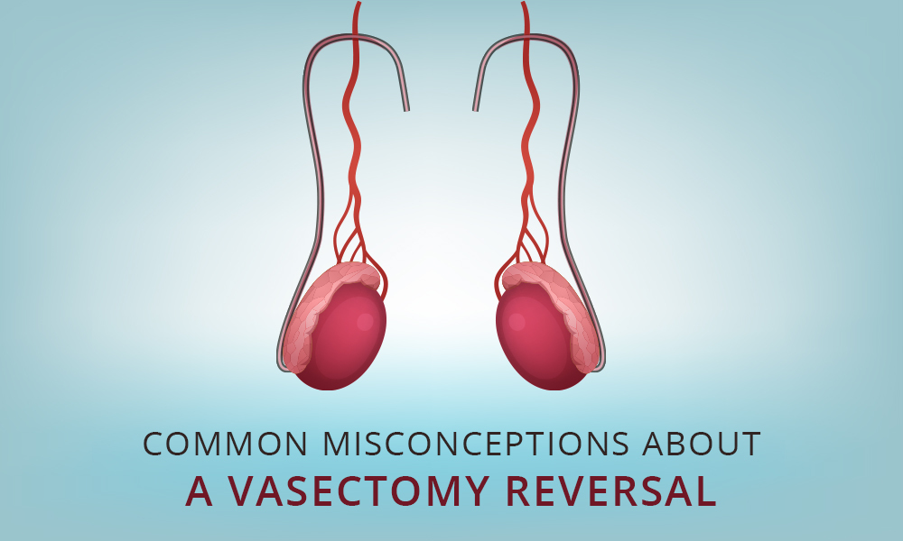 Common Misconceptions about a Vasectomy Reversal