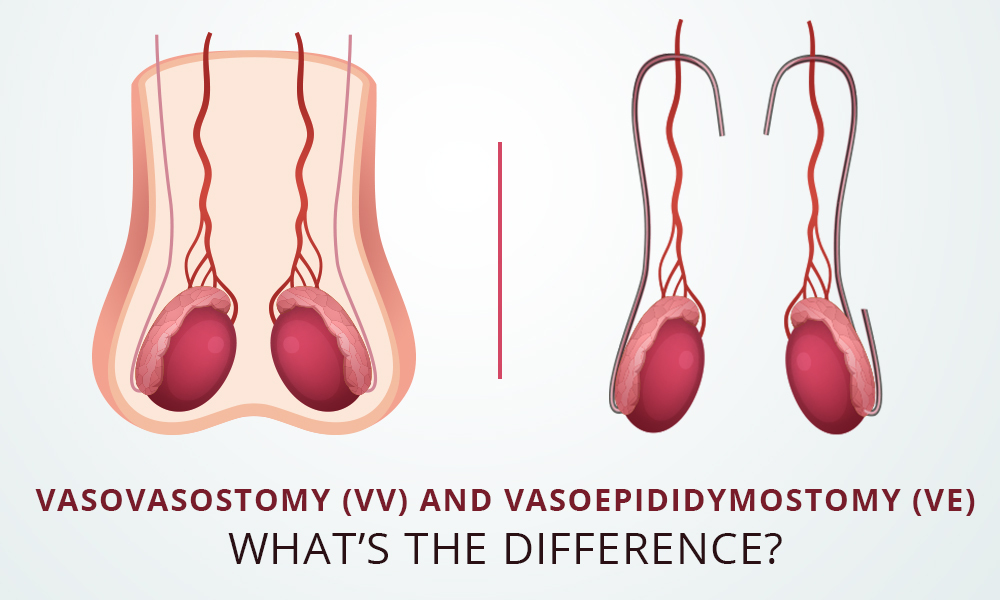 Vasovasostomy (VV) and Vasoepididymostomy (VE)