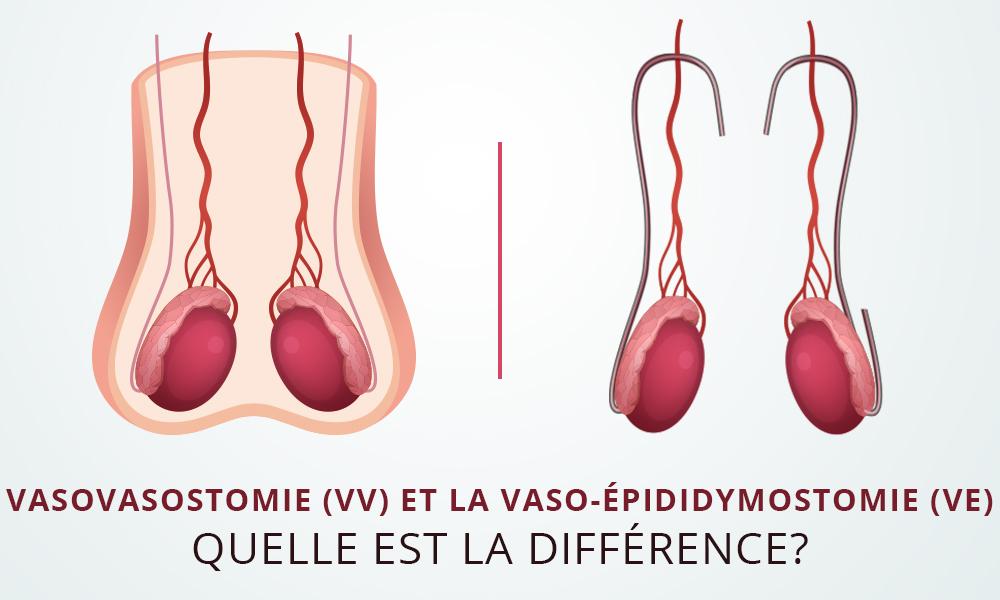 Inversion de vasectomie