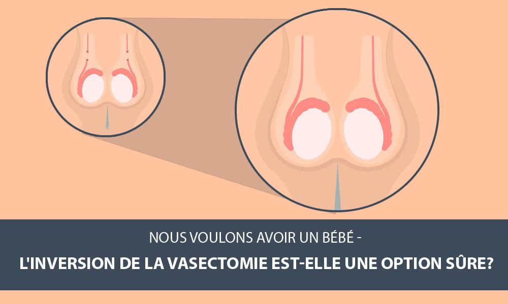 Inversion de vasectomie une option sûre?