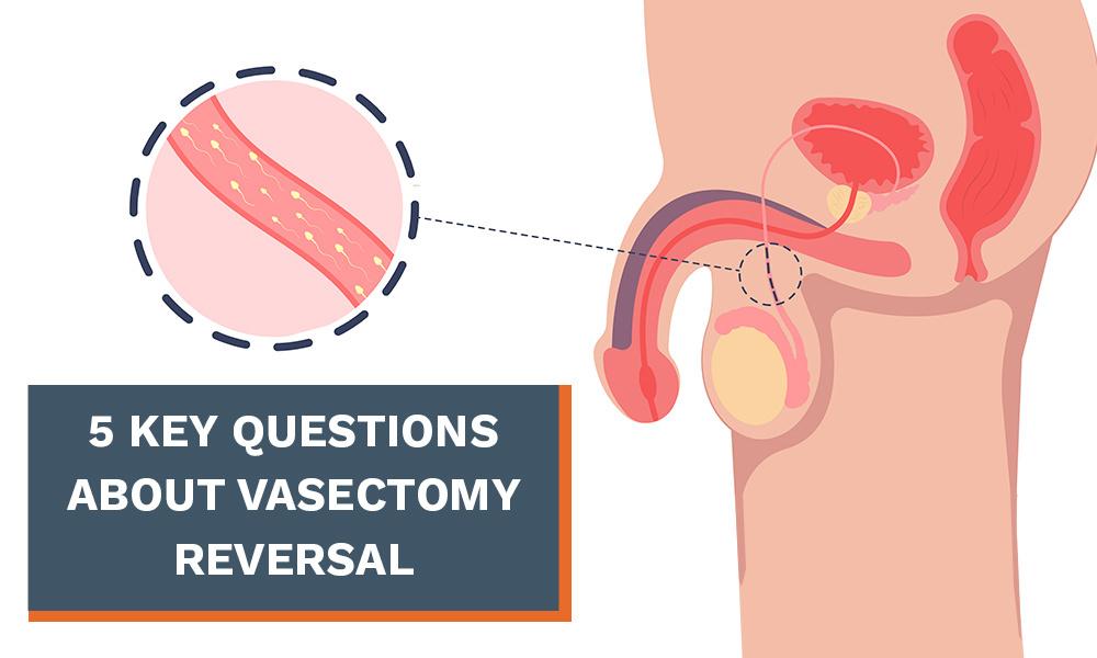Vasectomy Reversal in Montreal